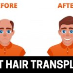 A Guide to the 5 Best Hair Transplants in Toronto