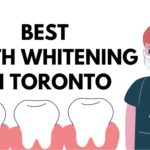 Top 5 Dental Clinics for the Best Teeth Whitening in Toronto